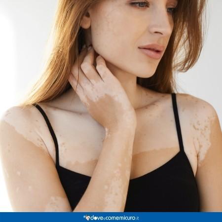 Immagine di una modella con vitiligine e conseguenti discromie della pelle