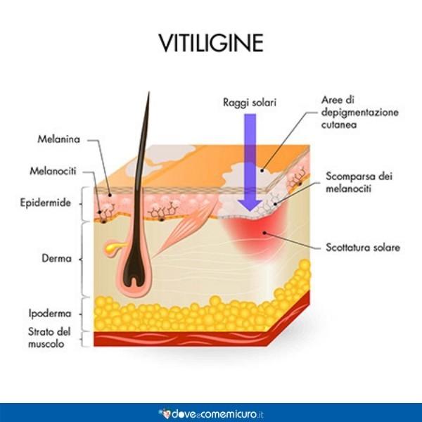 Infografica che illustra un tratto di epidermide colpito da vitiligine