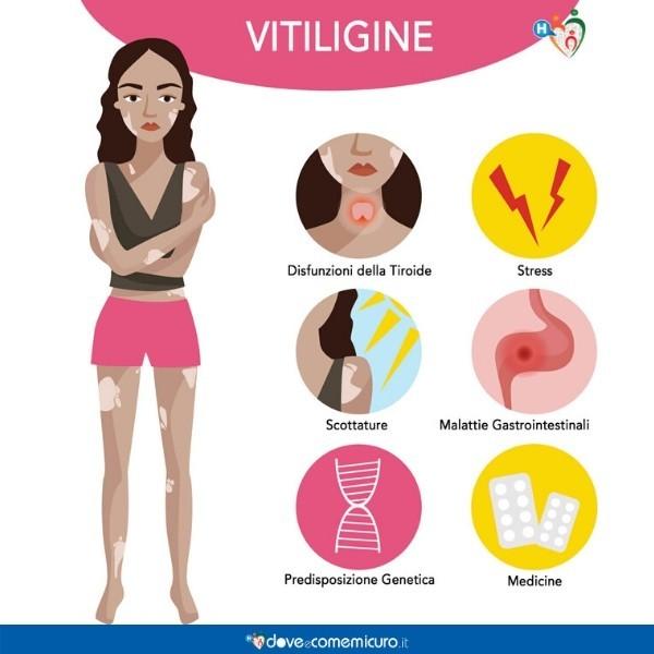 Infografica che mostra le caratteristiche e le conseguenze della vitiligine