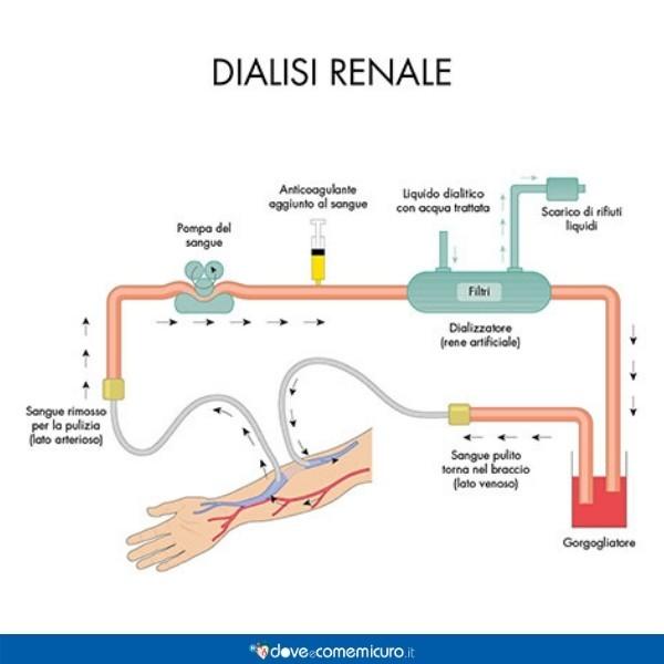 Infografica che illustra il meccanismo della dialisi renale