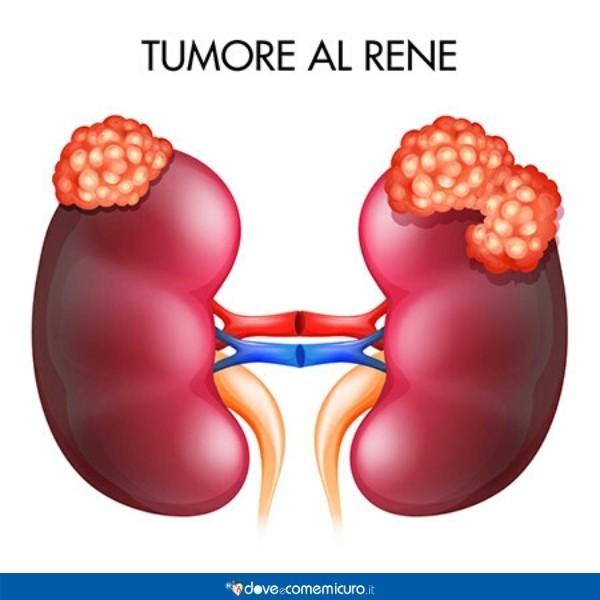 Infografica che mostra un rene affetto da tumore