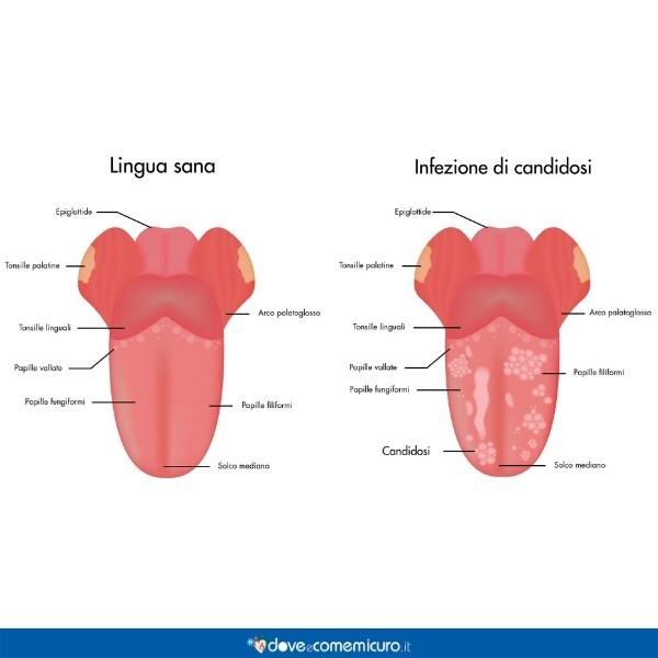 immagine che mostra le differenze tra una lingua sana e una con la candida