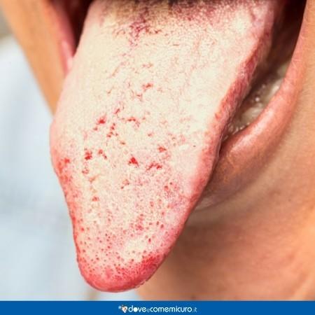 Fotografia che mostra una lingua ricoperta da una patina bianca di candida