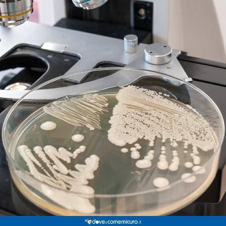 Immagine che mostra una coltura di candida in una piastra di Petri