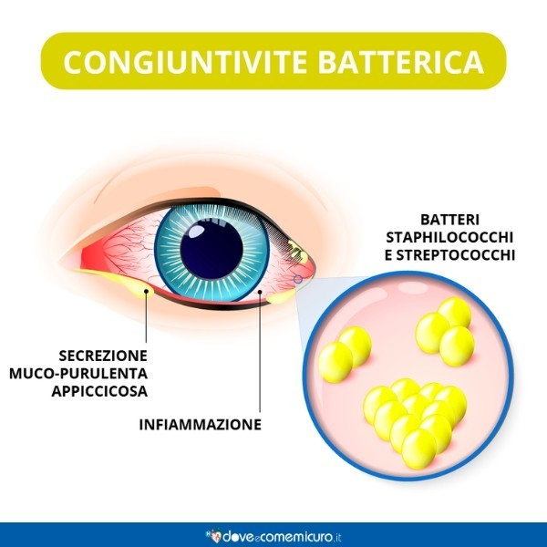 Immagine che mostra i sintomi e la cause della congiuntivite batterica nell'occhio