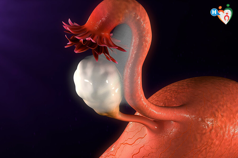 endometriosi e dolore all anca