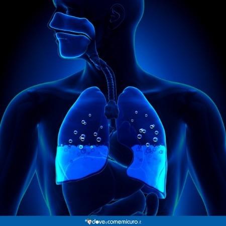 Immagine che mostra un edema polmonare, quando i polmoni sono pieni d'acqua