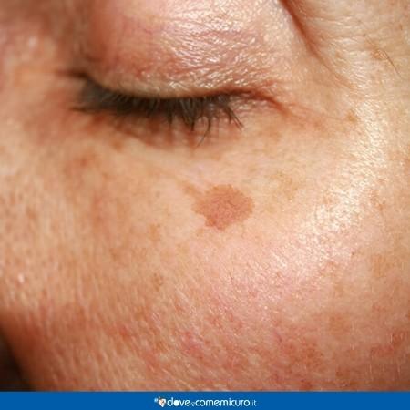 Immagine che mostra una donna con una macchia scura della pelle dovuta a una mancata protezione dai raggi solari