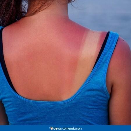 Immagine della schiena di una ragazza con una scottatura dovuta al sole
