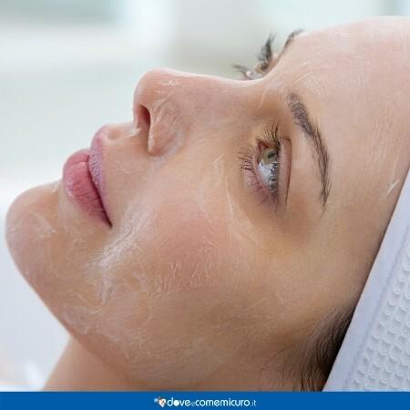 Immagine che mostra il viso di una ragazza durante un peeling chimico con acido glicolico
