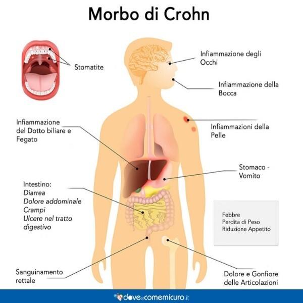 Immagine che illustra i sintomi e le conseguenze del Morbo di Crohn