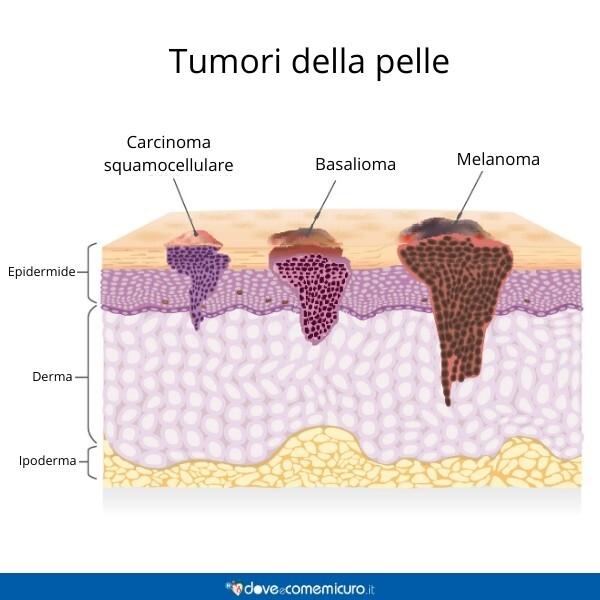 Immagine che mostra tre diversi tipi di tumori della pelle