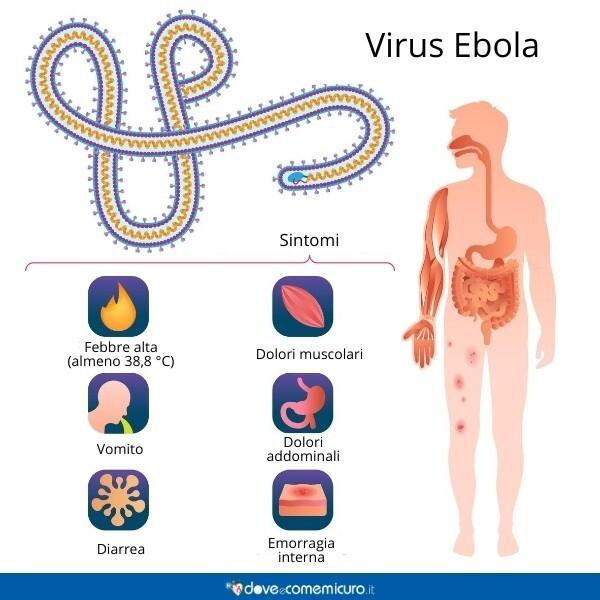 Immagine che mostra i sintomi del virus Ebola, come diarrea, emorragia interna e mal di testa