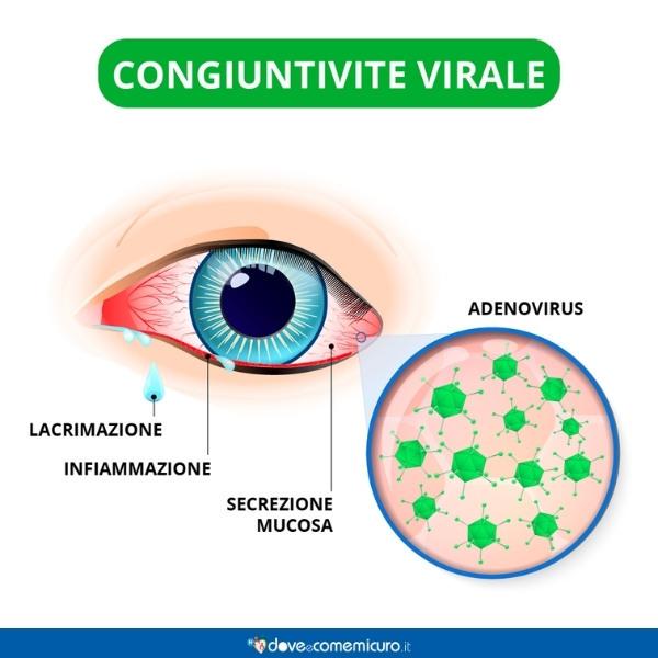 Immagine che mostra i sintomi della congiuntivite virale