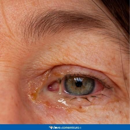 Immagine che mostra un occhio con congiuntivite e secrezione muco purulenta