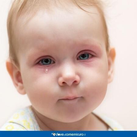 Immagine che mostra un bambino con gli occhi arrossati per la congiuntivite