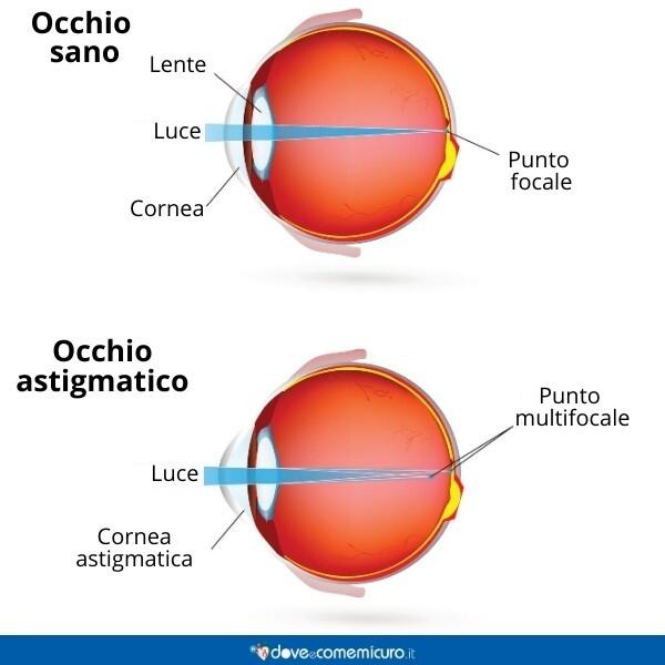 Immagine che mostra la differenza tra un occhio sano e un occhio astigmatico