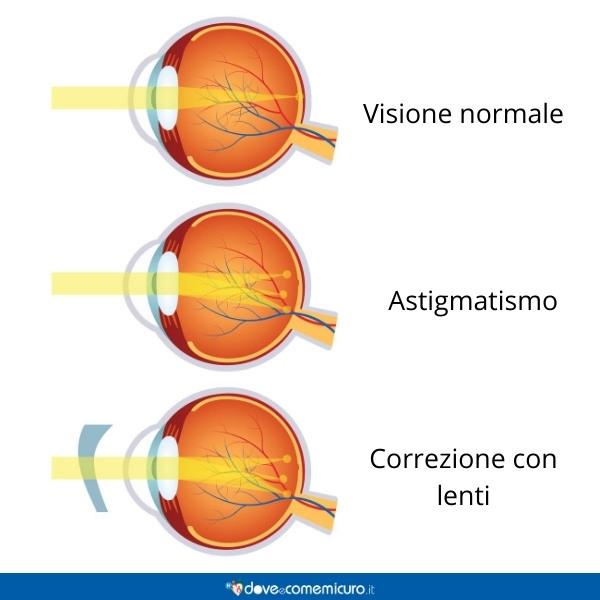 Immagine che mostra la differenza tra occhio normale, astigmatico e con lenti