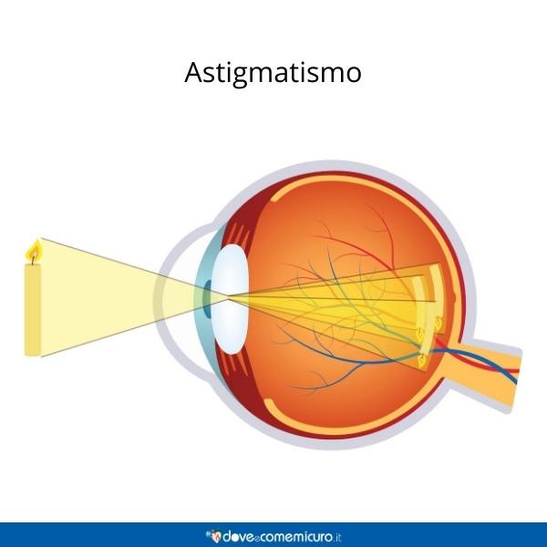 Immagine che mostra la visione di un occhio astigmatico