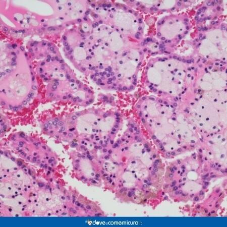 Immagine che mostra cellule tumorali di un cancro al rene al microscopio