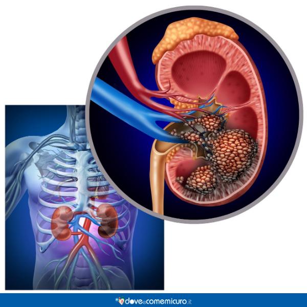 Immagine che mostra l'ingrandimento di un tumore al rene