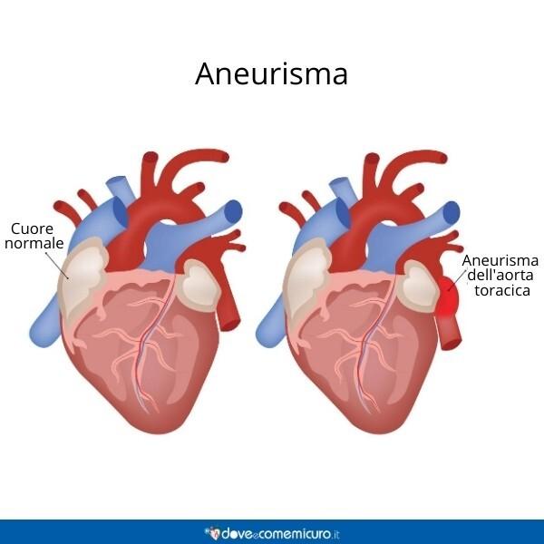 Immagine che mostra un aneurisma aortico del torace