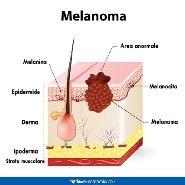Immagine che mostra un melanoma, visto in sezione