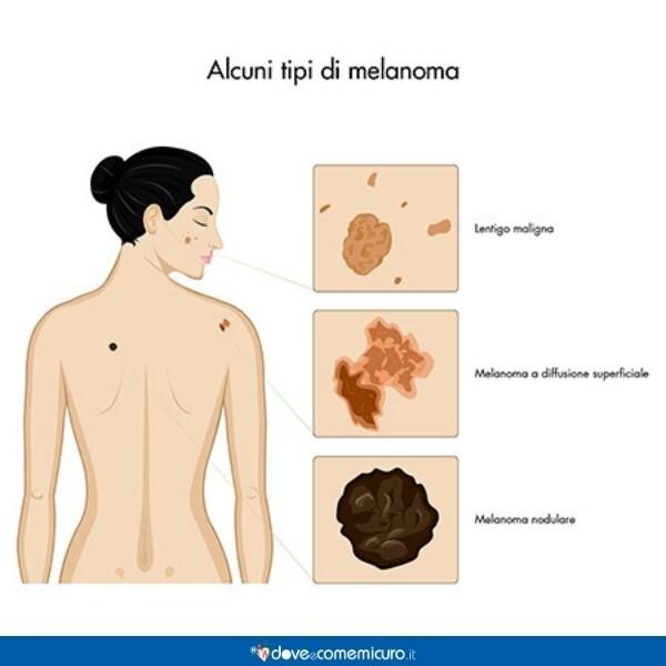 Immagine che mostra alcuni tipi di melanoma