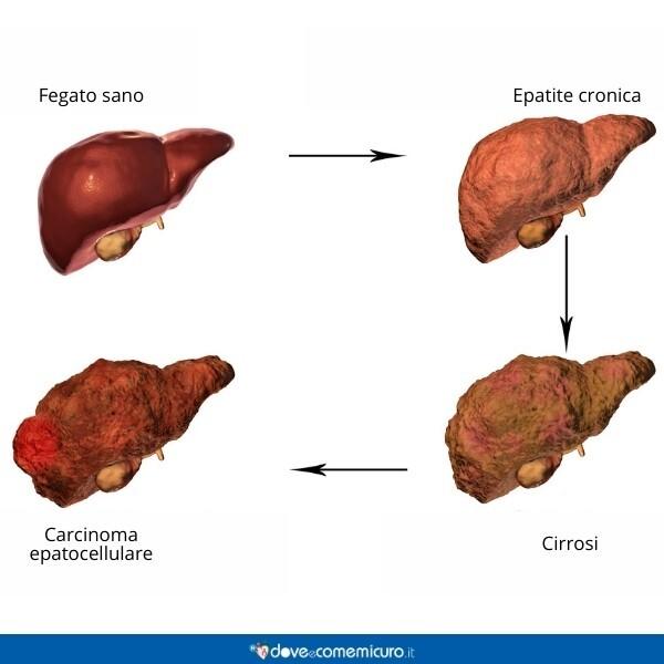 Immagine che mostra disturbi del fegato come cirrosi, epatite cronica, carcinoma epatocellulare