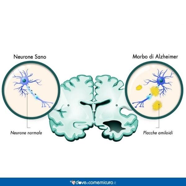 Immagine che mostra la differenza tra un neurone sano e le placche amiloidi