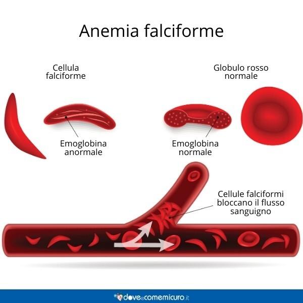 Immagine che mostra la differenza tra globuli rossi di chi è affetto da anemia falciforme e globuli rossi sani