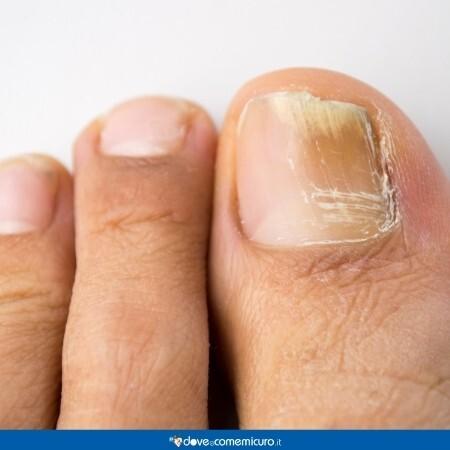 Immagine che mostra unghie dei piedi affette da micosi