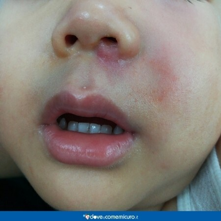 Immagine che mostra arrossamenti sul viso di un bambino
