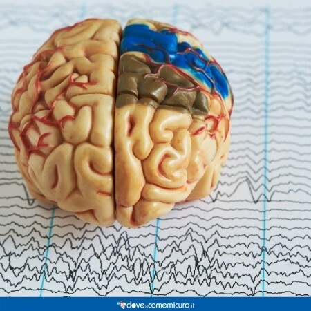 Immagine che mostra il modellino di un cervello su un Elettroencefalogramma