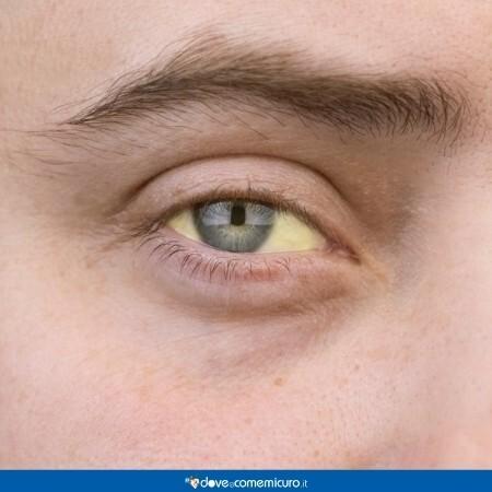 Immagine che mostra un occhio giallo, sintomo di itterizia