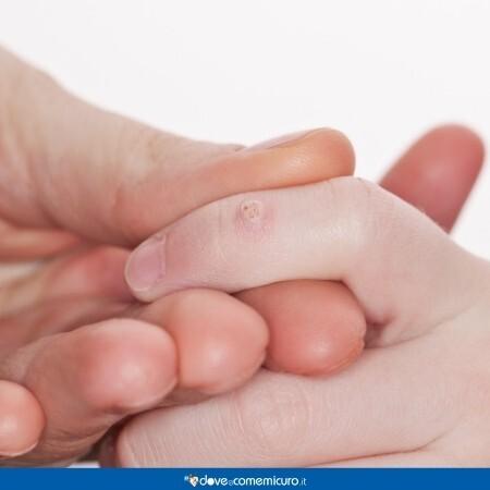 Immagine che mostra una verruca comune su una mano
