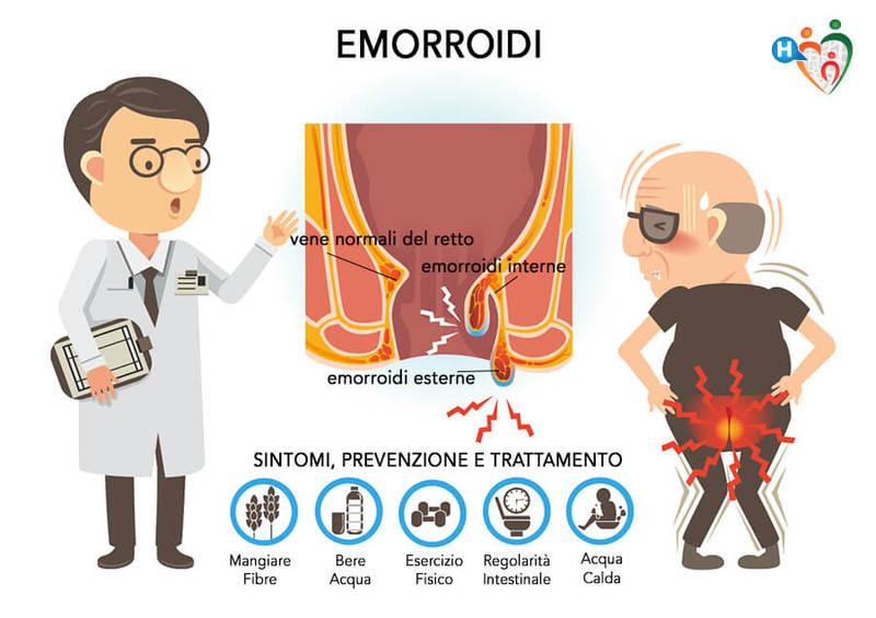 emorroidi e prostata infiammatato