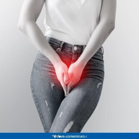 Immagine che rappresenta il varicocele femminile