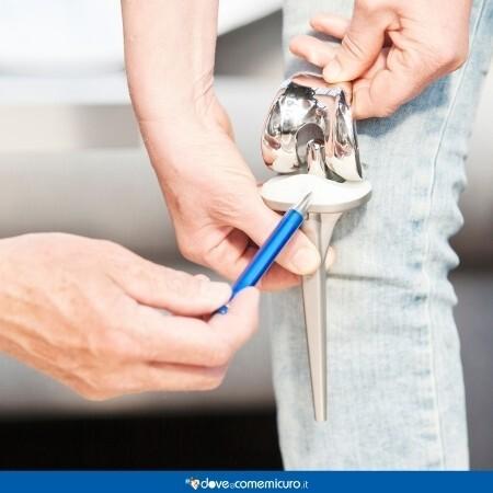 Immagine che rappresenta una protesi al ginocchio