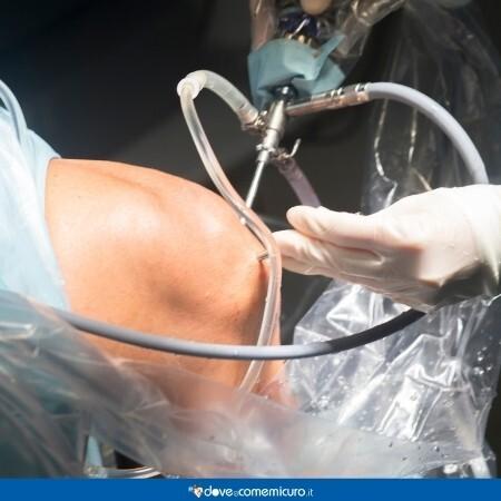Immagine che rappresenta una artroscopia a scopo terapeutico