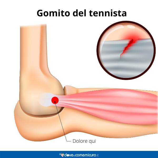Immagine infografica che rappresenta l'area del dolore chiamato e gomito da tennista