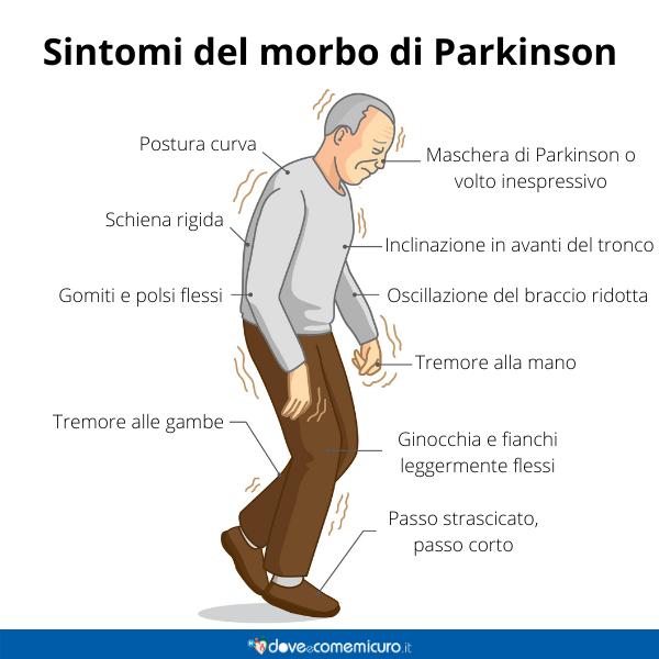 Immagine infografica che rappresenta i sintomi del morbo di parkinson in un uomo