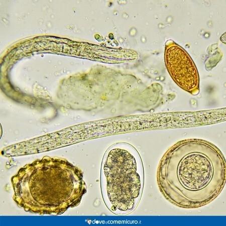 Immagine che rappresenta uova e ossiuri maturi al microscopio
