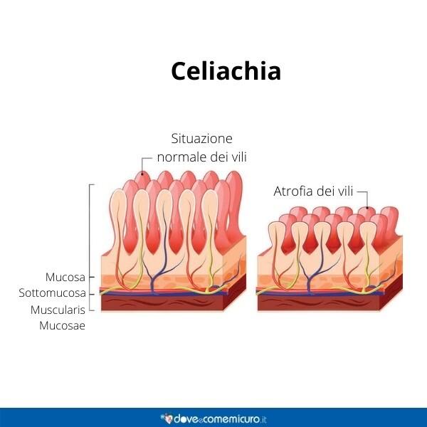 Immagine infografica che rappresenta la mucosa e la condizione della celiachia