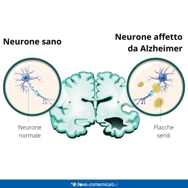 Immagine infografica che rappresenta lo stato del  neurone sano e affetto da Alzheimer