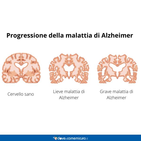 Immagine infografica che rappresenta la progressione della malattia di Alzheimer