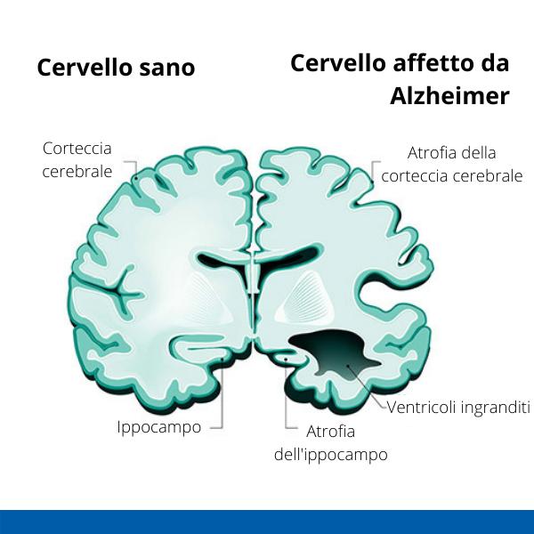 Immagine infografica che rappresenta lla struttura di un cervello sano e di uno affetto da Alzheimer