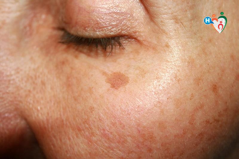 macchie della pelle tumori
