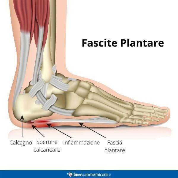 Immagine infografica che rappresenta la fascite plantare nel piede