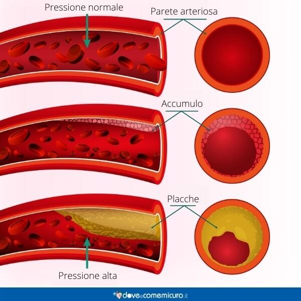 Immagine infografica che rappresenta l'arterosclerosi dei vasi